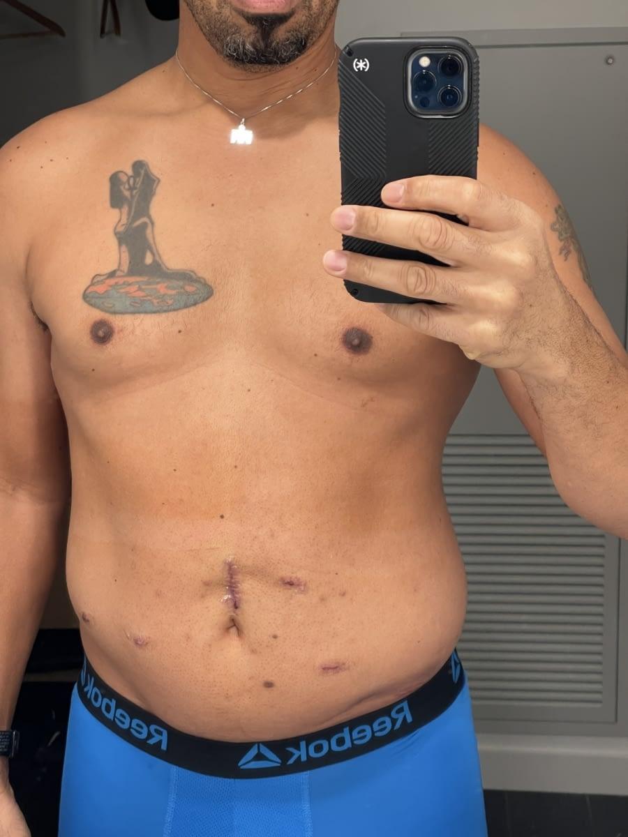 Postop-day-4-abdomen-5