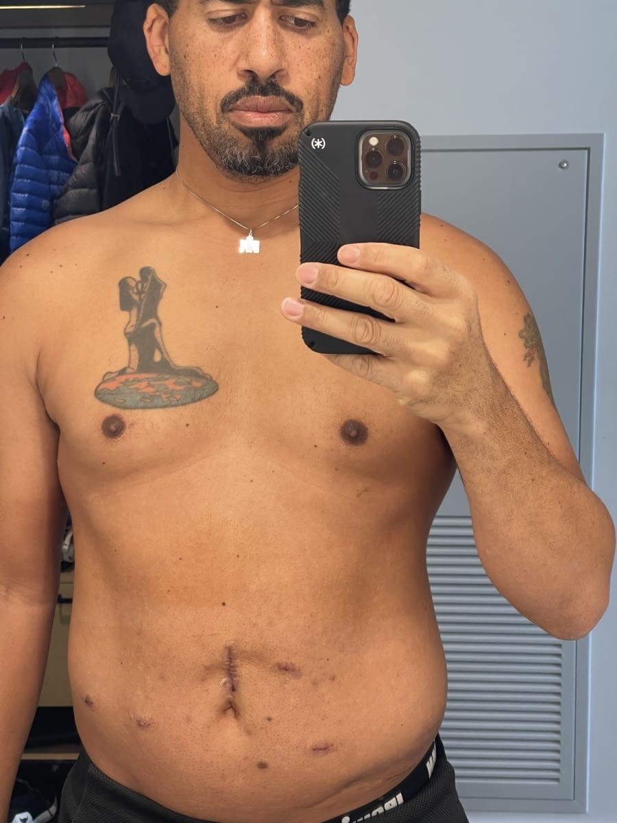 Postop-day-4-abdomen-4